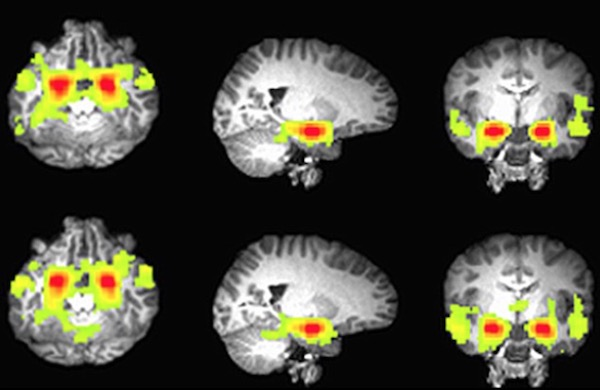 MRIの映像