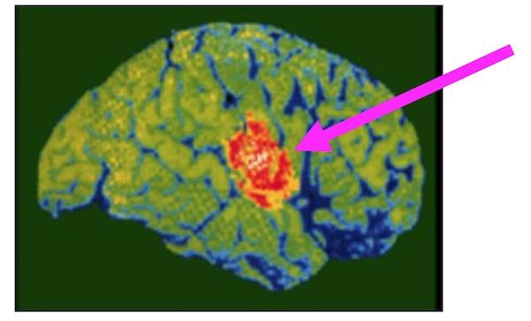 英会話は2つの脳を使ってる - 語学は2つのモードで獲得している