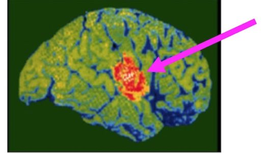 Zoom会議で脳が疲労するわけを脳科学的に考えてみる